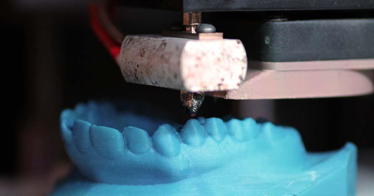 3D Drucker für Kieferorthopädie