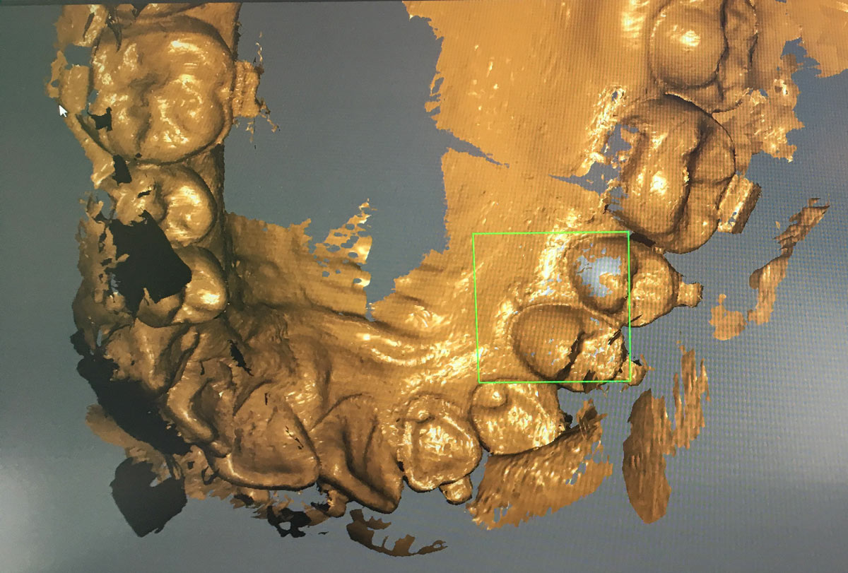 Ergebnisse 3D Scanner Carestream CS 3600