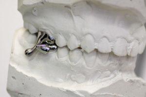 Kieferorthopädie mit Bitainer Zahnspangen statt Kieferchirurgie?