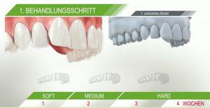 Sind ClearAligner statt fester Zahnspange bei kieferchirurgischer Kieferorthopädie geeignet?