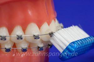 Reparaturen und Verfärbung, wie kann ich Ärger mit der Zahnspange vermeiden?