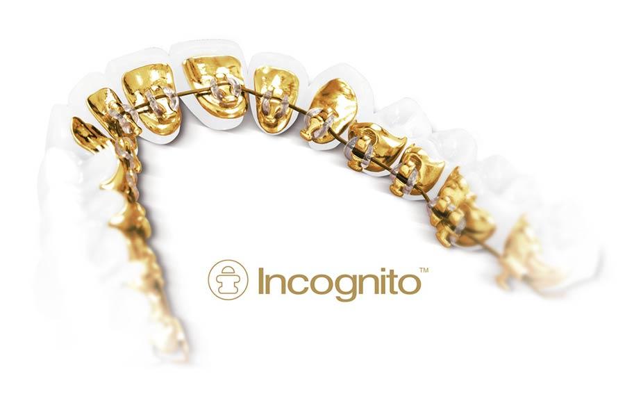 Unsichtbare Zahnspange: Incognito