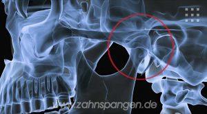 Was tun bei Kiefergelenkschmerz, wenn eine Schiene nicht hilft?