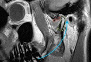 Kieferschmerz und eingeschränkte Mundöffnung: gibt es eine Möglichkeit der Behandlung ohne Schmerzmittel