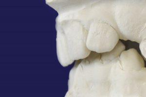 Nach 10 Jahren Zahnspange werden meine Zähne wieder schief, was kann der Kieferorthopäde tun?