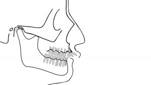 Rückfall nach Zahnspange: wie kann man das Ergebnis der Kieferorthopädie erhalten?